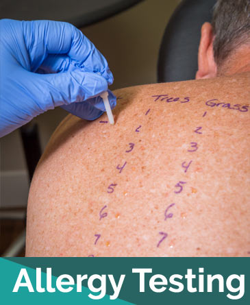 Allergy Testing | Naples Allergy Center Naples Florida